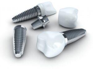 Dental Implant Plano TX