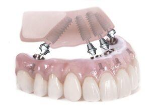 Plano Dental